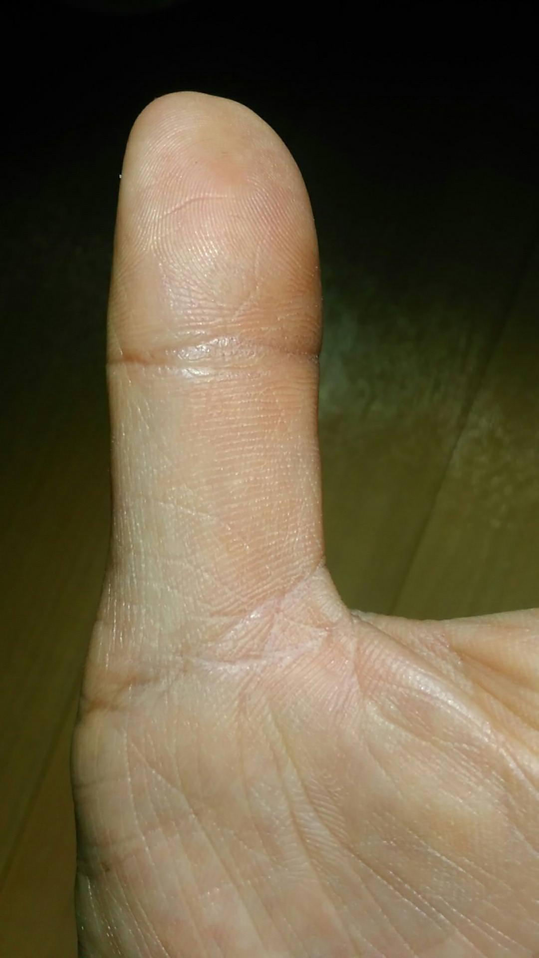 左親指の 仏眼