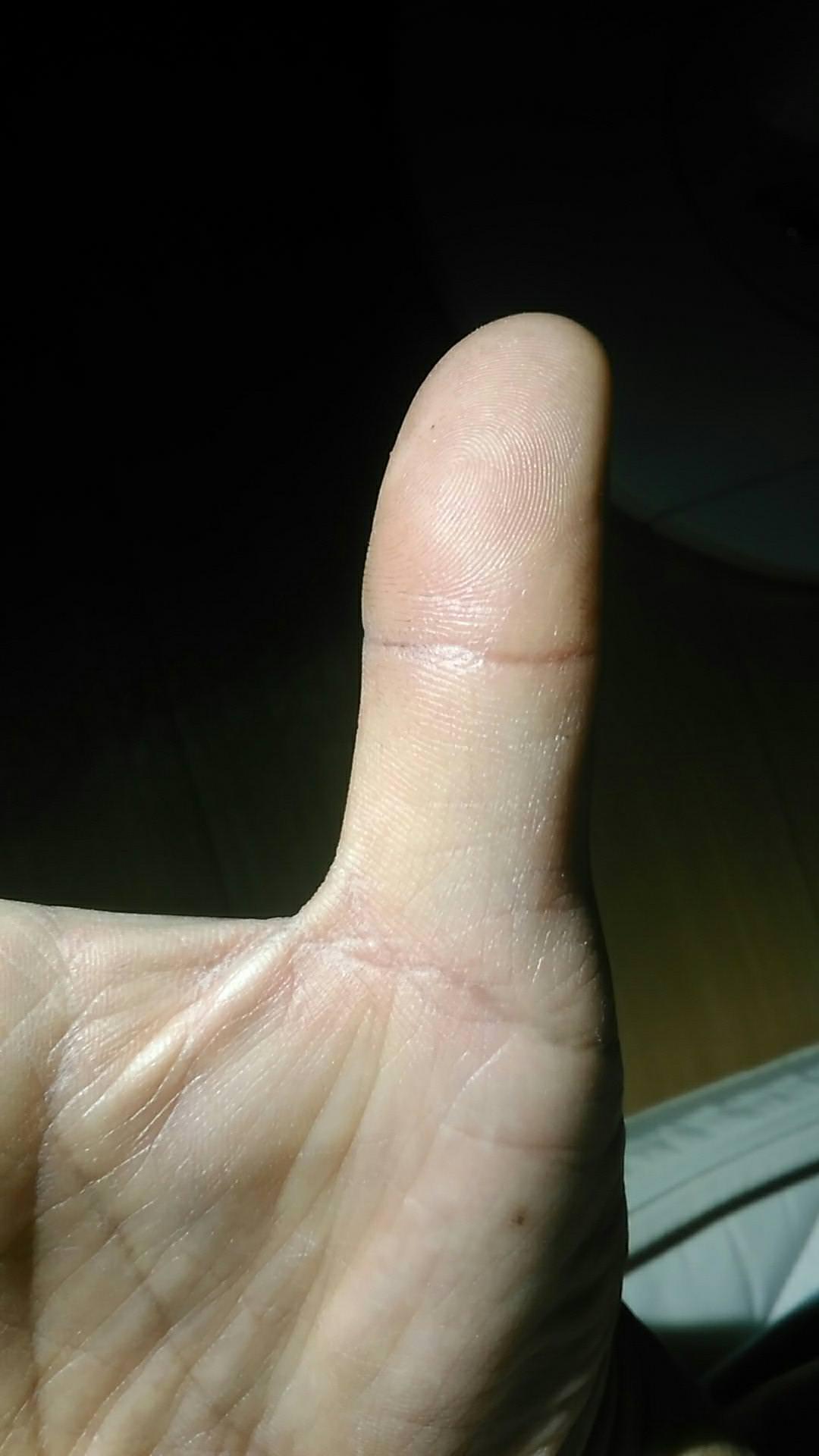 右親指の仏眼